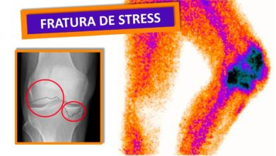 Photo of Fratura por stress