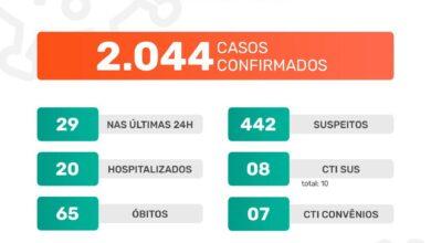 Photo of A Prefeitura de Jaboticabal informa que neste sábado, dia 9 de janeiro de 2021, foram confirmados 29 casos positivos do novo coronavírus. Até o momento, o município contabiliza 2.004 casos confirmados da Covid-19